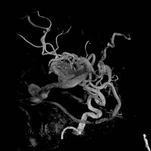 Cerebral Arteriovenous Malformations