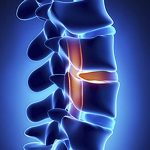 Spinal Disc Disease