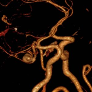 Aneurysm angiography